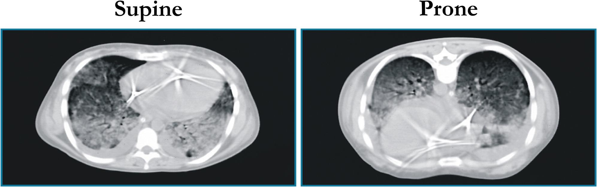 scan poumon.jpeg